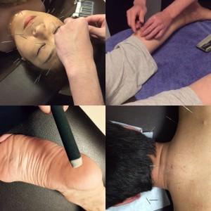 足の浮腫み、疲れ&しわ、たるみ、背中の痛みの治療動画