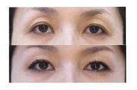 肌再生FGF注入療法で目元の若返りを。